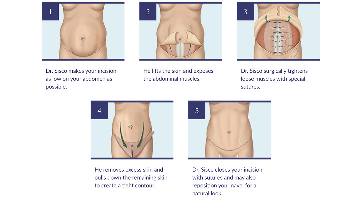 tummy tuck procedure steps diagram