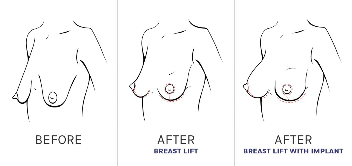 Breast before, after and after with implant illustration